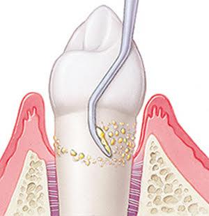 歯周病治療方法