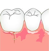 ③歯周組織再生療法