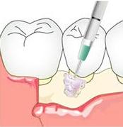 ②歯周組織再生療法