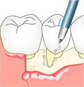 ①歯周組織再生療法