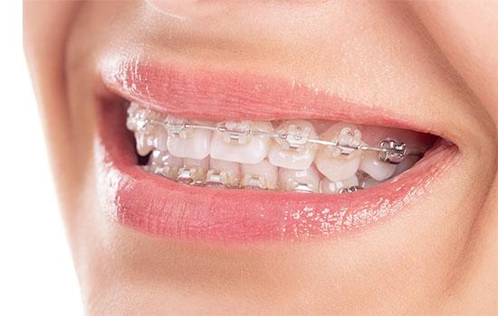 大人の矯正歯科イメージ