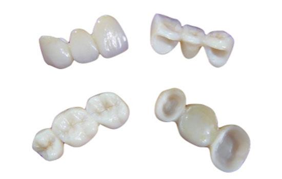 セラミックの歯イメージ